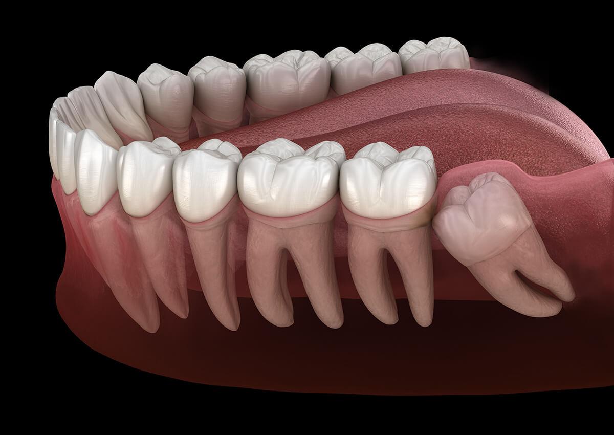 Extraction des dents de sagesse